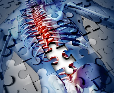 osteoporosis_scurvy
